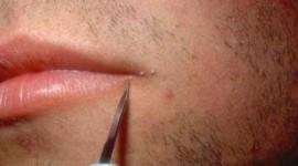 Tocantins mostra atraso para imunização contra HPV