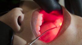 Lesões na boca por causa da quimioterapia já têm solução